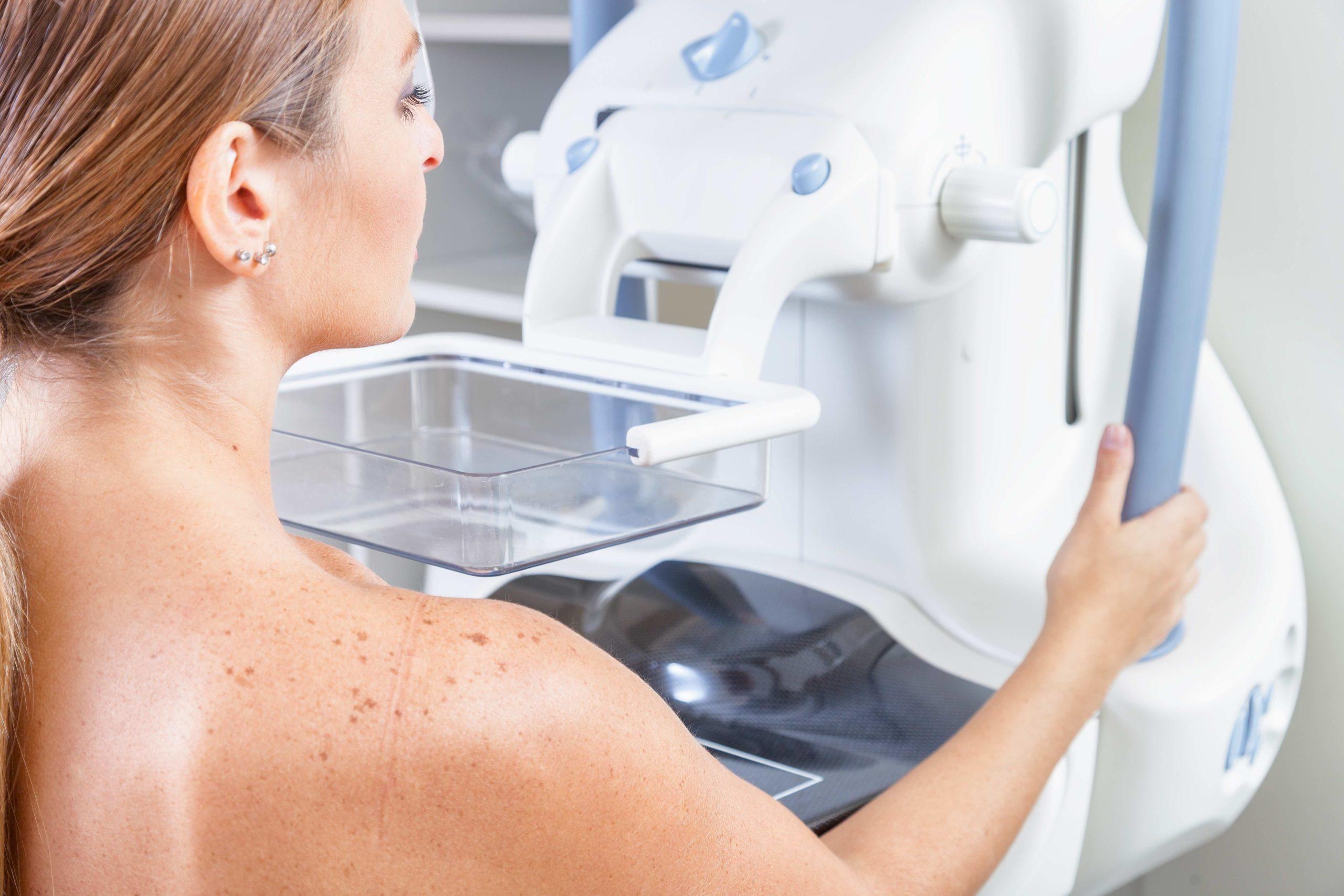cos'è mammografia